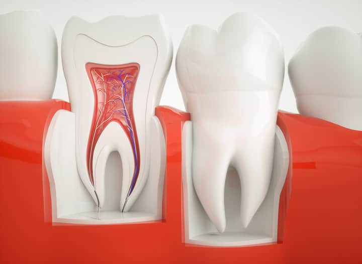 Root Canals in Madison AL