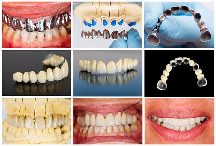 Dental Bridges in Madison AL