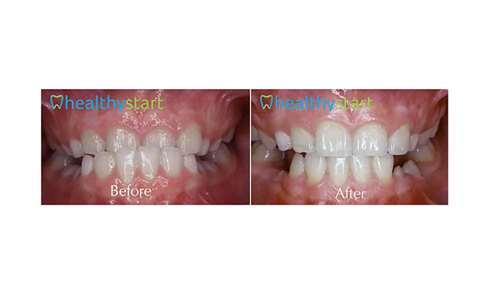 Class III Before and After Divine Expressions Family Dentistry