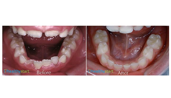Lower Arch Crowding Before and After Divine Expressions Family Dentistry