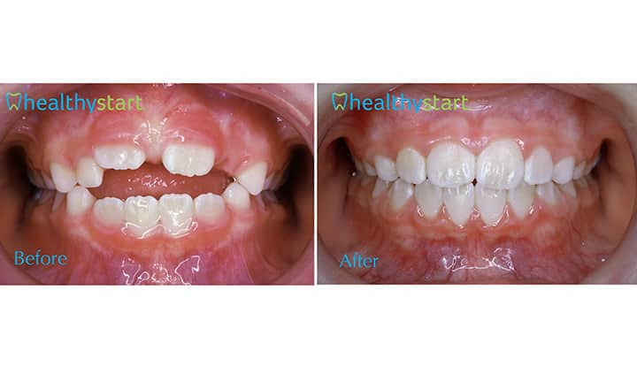 Open Bite Before and After Divine Expressions Family Dentistry