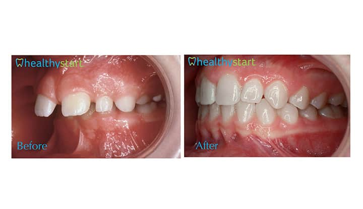 Overjet Before and After 2 Healthy Start