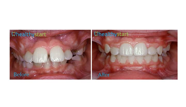 Overjet Before and After Healthy Start