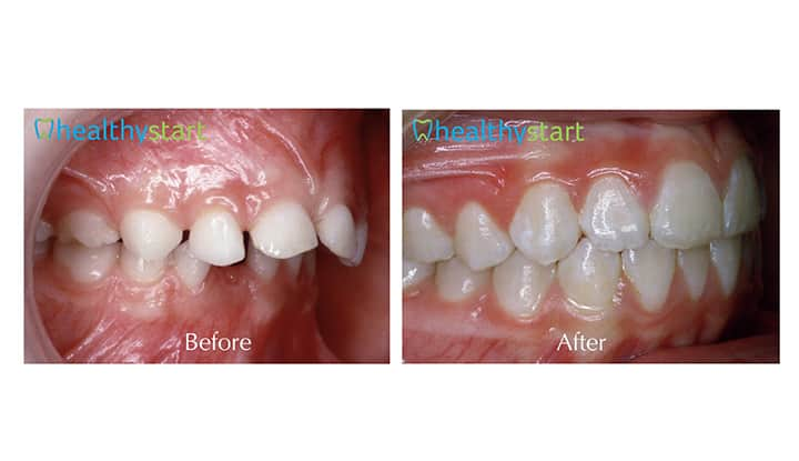 Under Developed Jaw Before and After Divine Expressions Family Dentistry