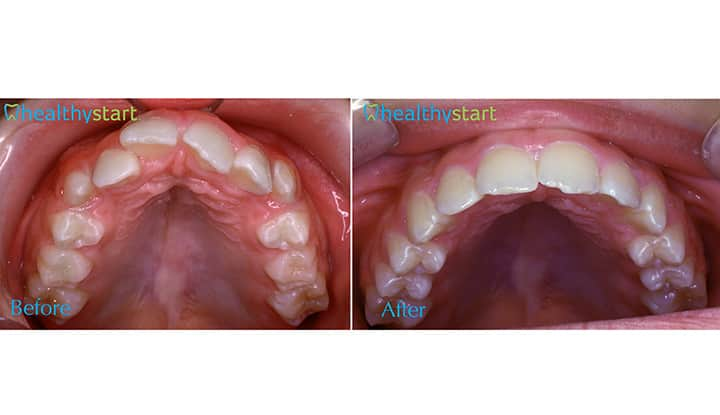 Upper Arch Crowding Before and After Divine Expressions Family Dentistry